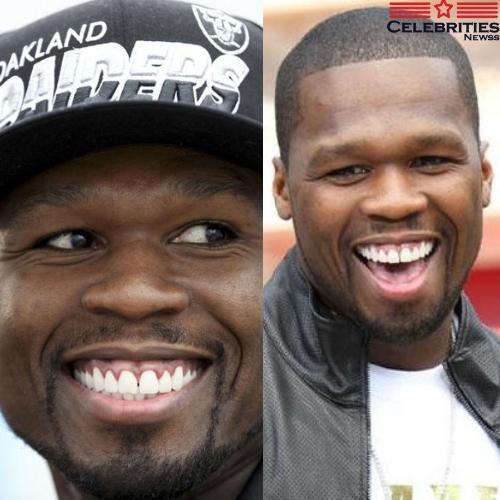 50 Cent teeth