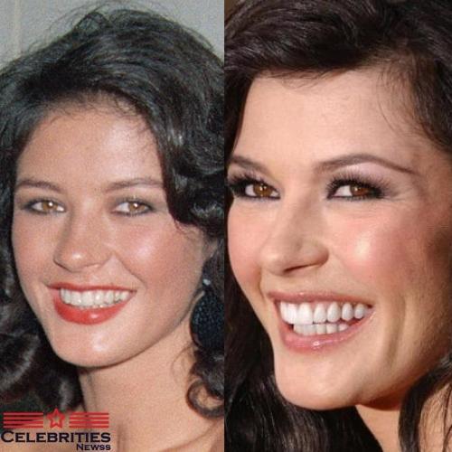 Catherine Zeta-Jones teeth