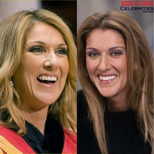 Celine Dion teeth