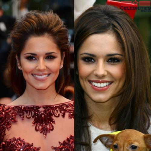 Cheryl Cole teeth