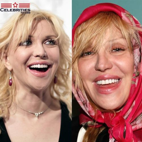 Courtney Love teeth