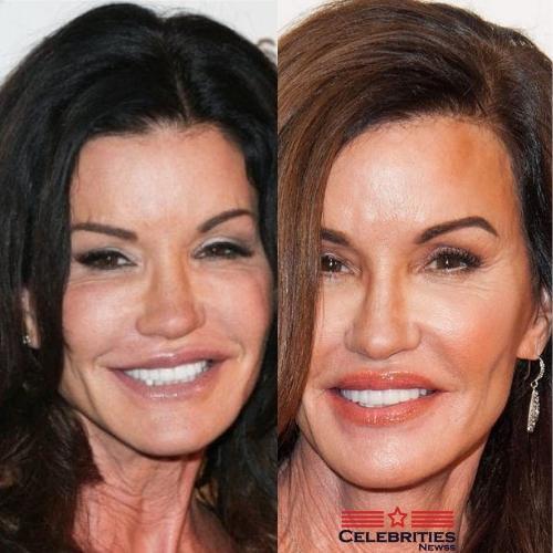 Janice Dickinson teeth